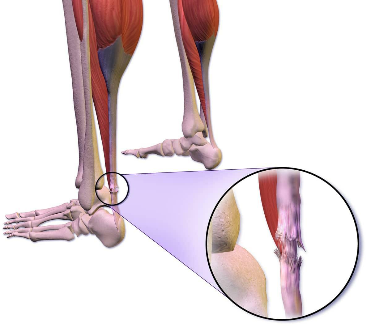 Anatomy of the Achilles Tendon causing pain.