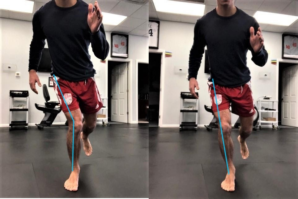 comparison photo of a knee that has collapsed inwards vs a normal straight knee alignment