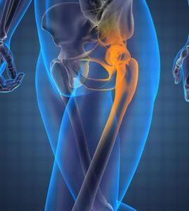 hip bursitis x-ray